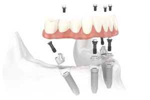 All-on-4 Implants Procedure Icon