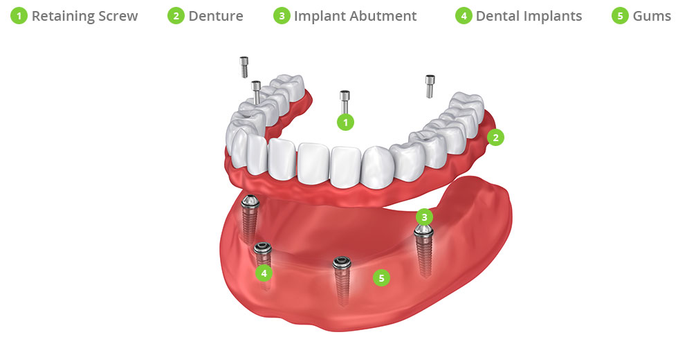 What Does the All-On-4® Dental Implants Procedure Involve?