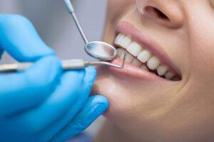 teeth exam